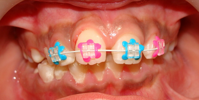 fashion-braces-smaller