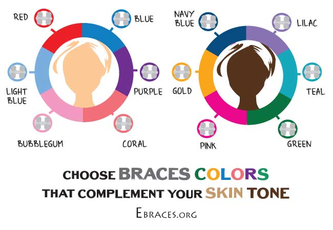 braces colors that complement different skin tones
