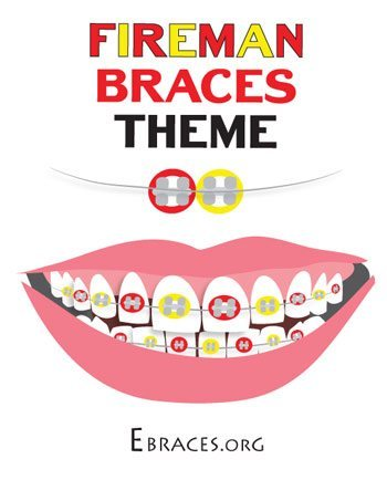braces colors boys