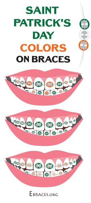 braces color combinations