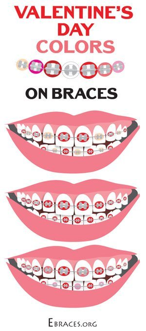 braces color combinations for valentine