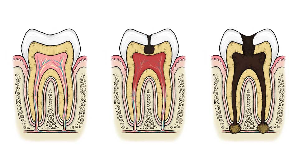Tooth root infection can lead to tooth removal.