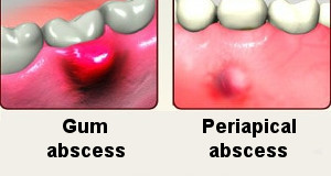 abscess tooth types