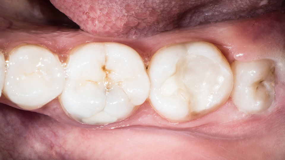 A close-up of pericoronitis—a common wisdom tooth problem. It causes wisdom teeth symptoms such as pain and inflammation.