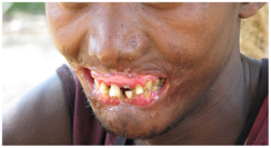 Cancrum oris (noma) in an adult male. Note destruction of orofacial tissues.
