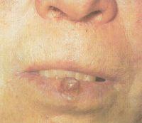 Узел округлой формы при бородавчатой форме предрака губы