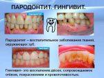 Чем лечить пародонтоз десен препараты – лекарства, мази, препараты, антибиотики, зубная паста