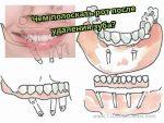 От хлоргексидина темнеют зубы – Хлоргексидин окрашивает зубы