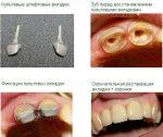 Вкладка зубная – Вкладка на зуб что это такое, цена реставрации и восстановления зуба