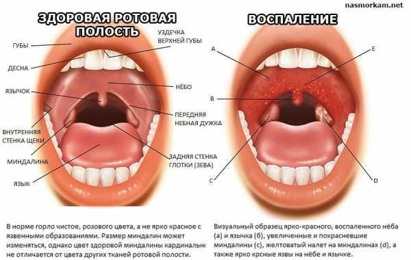 Язвочки на задней стенке горла — Нет насморка