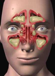 Вязкая слюна во рту причины кашель
