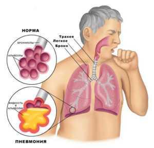 Пенится слюна во рту причины – Густая, вязкая и тягучая слюна во рту: причины густой слюны, лечение — Медицина в фотографиях
