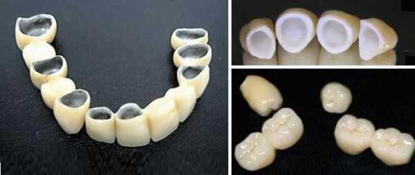 Зубы металлокерамика или металлопластмасса цена – Металлокерамика или металлопластмасса – сравнение и выбор — Медицина в фотографиях